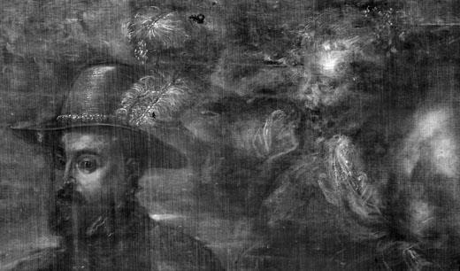 <p><em>Fig.1</em>. Detail of the x-ray</p>